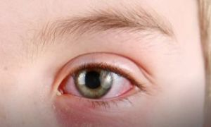 Белые выделения из глаз у взрослых: причины и лечение
