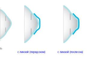 Контактные линзы для дальнозоркости – какие выбрать для использования
