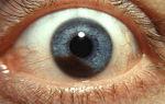 Меланома хориоидеи глаза — причины, симптомы и лечение