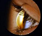 Кератоглобус – причины, симптомы и лечение (фото)