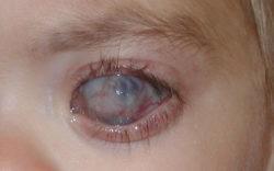 Боль в глазном яблоке: причины и лечение
