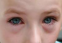Конъюнктивит глаз у детей – признаки, симптомы и лечения у ребенка
