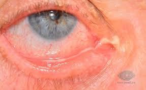 Гноятся глаза у взрослого: причины, что делать и чем лечить