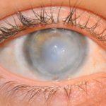 Отек роговицы глаза – симптомы и лечение