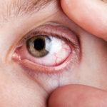 Ожог сетчатки глаза – симптомы и способы лечения