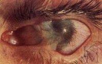 Ожоги глаз – виды, первая помощь и лечение ожогов