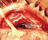 Гонококковый конъюнктивит — симптомы и лечение (гонорея глаз)