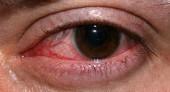 Паренхиматозный кератит (сифилитический) – симптомы, лечение и профилактика