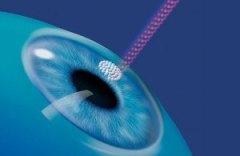 Лазерная коррекция зрения при астигматизме — лечение и цены