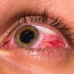 Как снизить глазное давление в домашних условиях, лечение внутриглазного давления
