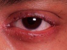 Блефарит у детей — причины, симптомы и лечение (фото)