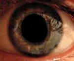 Афакия глаза, что это такое: признаки, симптомы и лечение