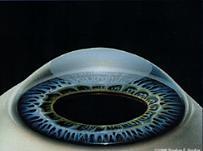 Операция кератопластика (пересадка роговицы) – виды, показания