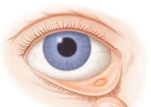Киста глаза — причины, симптомы и лечение (фото)