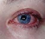 Блефароконъюнктивит глаз – причины, симптомы и лечение (фото)
