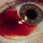 Кровоизлияние в склеру глаза – причины, симптомы и лечение