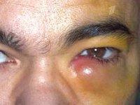 Дакриоцистит — причины, симптомы и лечение (фото)