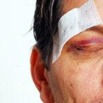Отек сетчатки глаза – причины и лечение